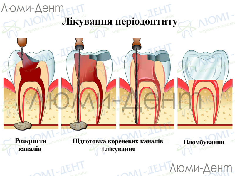 Болит зуб заболел фото Люмі-Дент