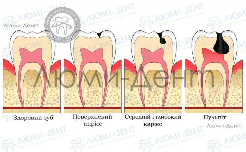 Зубний біль фото Люмі-Дент
