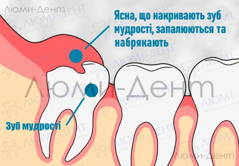 Болить зуб мудрості фото Люмі-Дент