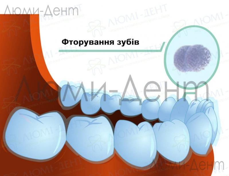 Реминерализация зубів