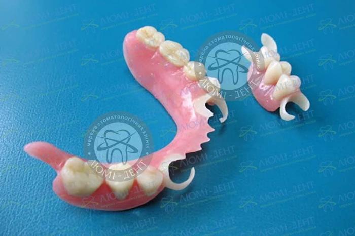 Часткові знімні протези стоматологія фото Люмі-Дент