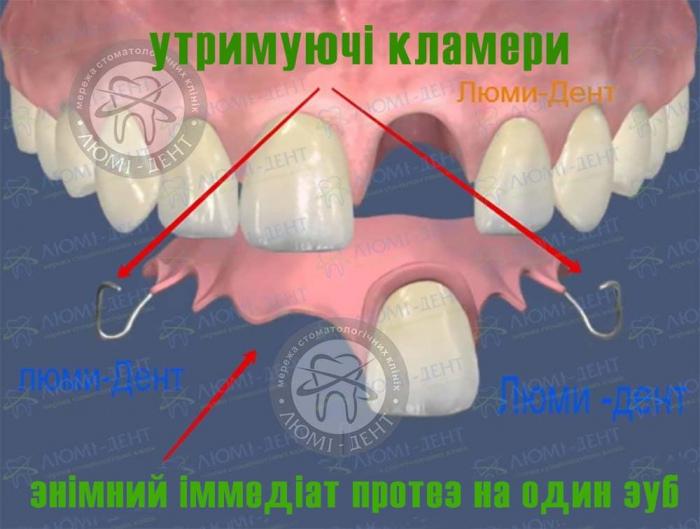 Знімний імедіат протез на один зуб фото Люмі-Дент