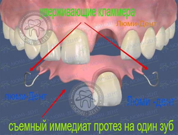 Съемный иммедиат протез на один зуб фото Люми-Дент