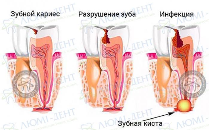 Резекція зуба фото ЛюміДент
