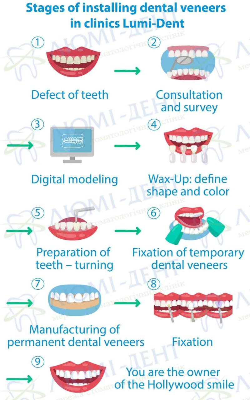 Teeth ceramic veneers Lumi-Dent