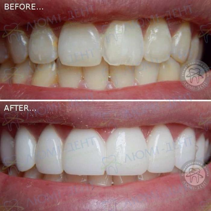 Керамические коронки на зубы фото Люми-Дент