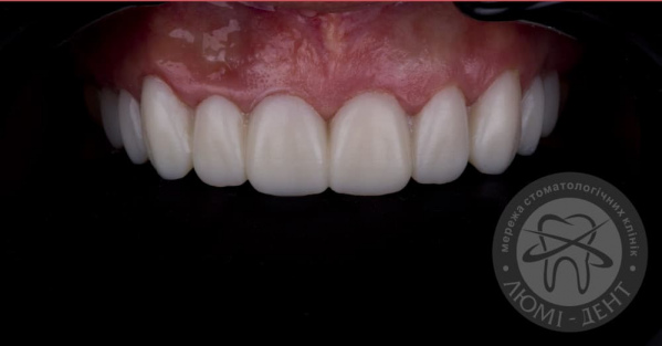 Накладки на зубы фото Люми-Дент