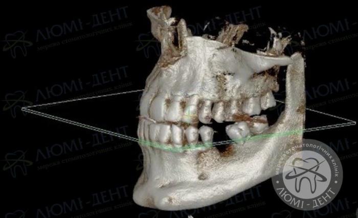 как устанавливают зубные импланты фото Люми-дент
