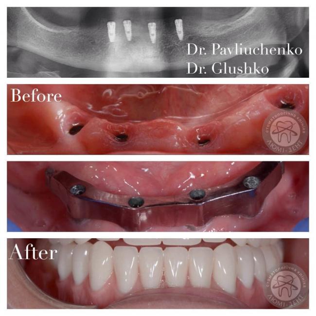 Зубные импланты зубов фото Люми-Дент
