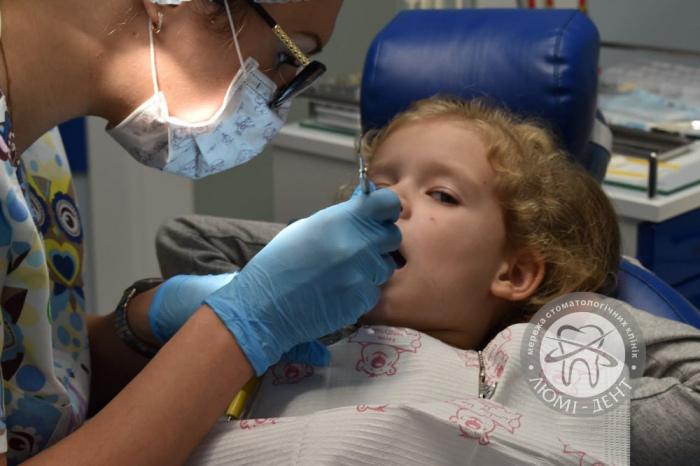 Смена молочных зубов фото Киев Люми-Дент