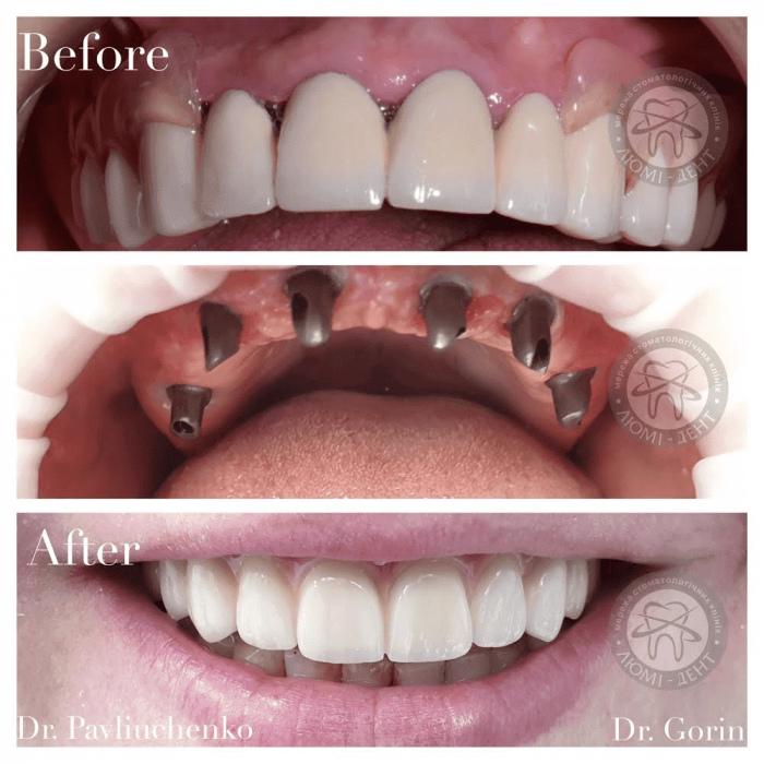 Имплантация зуба фото Люми-Дент