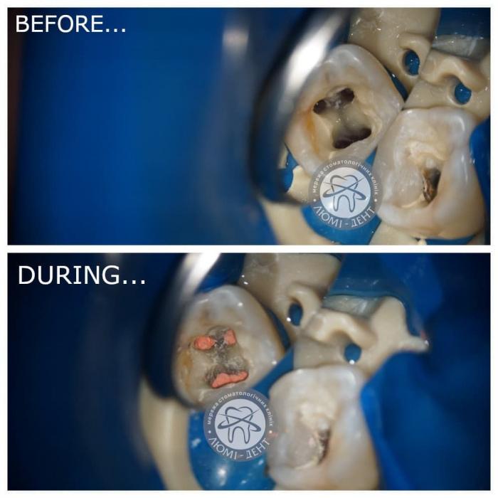 Чистка розпломбування каналів зуба фото київ Люмі-Дент