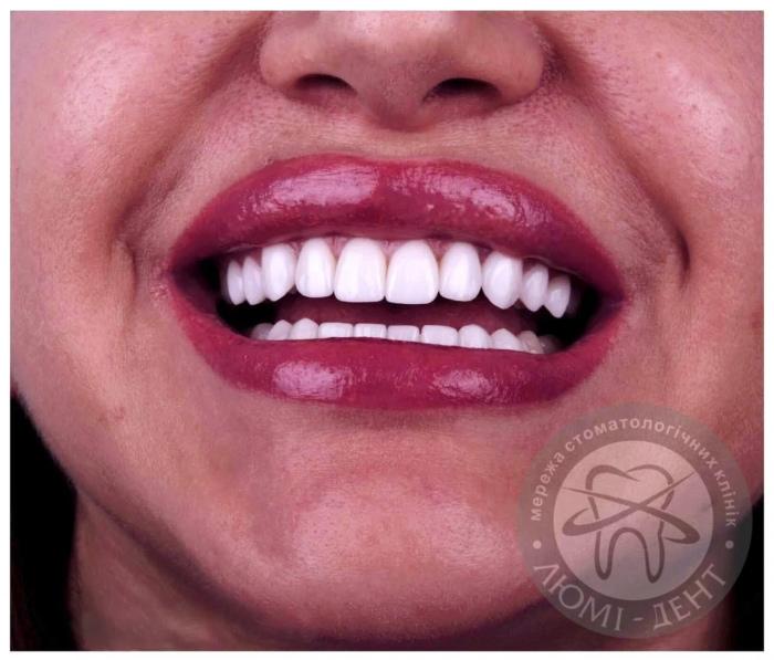 виниры красивая улыбка фото Люми-Дент