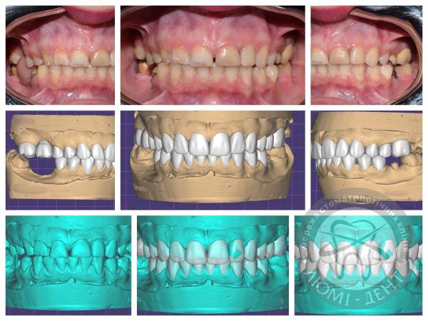 Виниры на зубы фото киев Люми-Дент