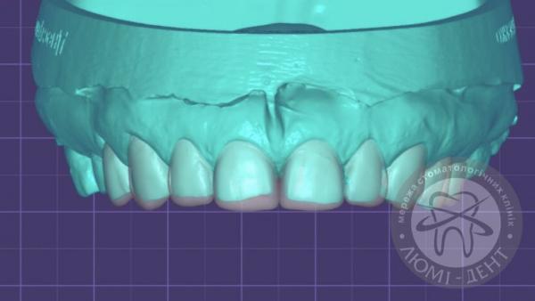 Зубные виниры фото Люми-Дент