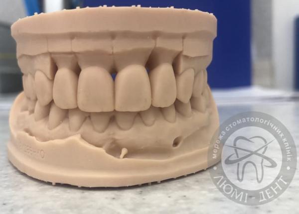 Керамические виниры зубов фото Люми-Дент