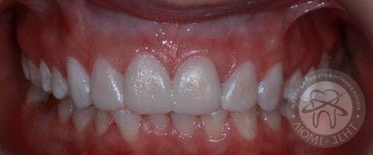 Красивые и белые зубы фото киев Люми-Дент