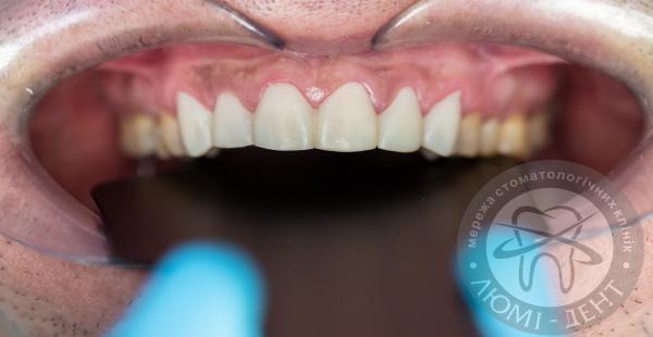 пластины на зубы фото Люми-Дент