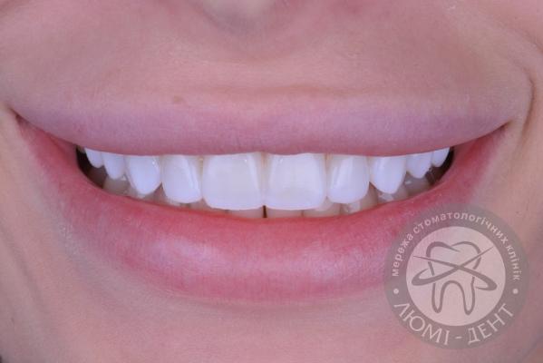 Виниры на зубы этапы установки фото Люми-Дент