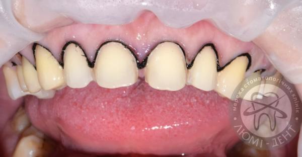 Виниры на зубы Люми-Дент