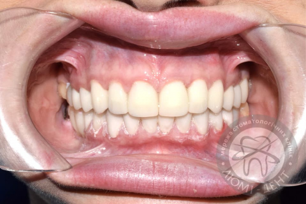 Изготовление виниров на зубы фото Люми-Дент