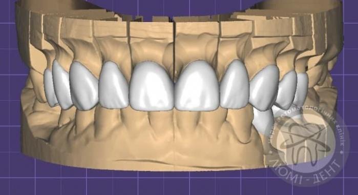 Как выглядят виниры на зубах фото Люми-Дент