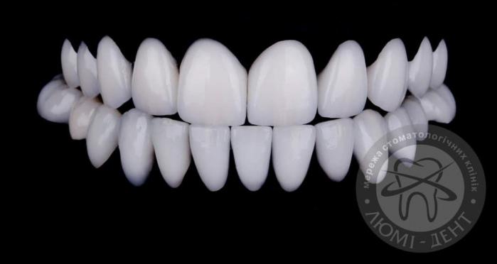 Накладки на зубы виниры на зубы фото киев Люми-Дент