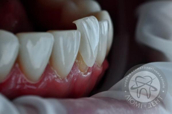 Накладки на зубы установить виниры на зубы фото киев Люми-Дент