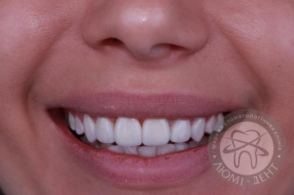 Красивая улыбка виниры фото Люми-Дент