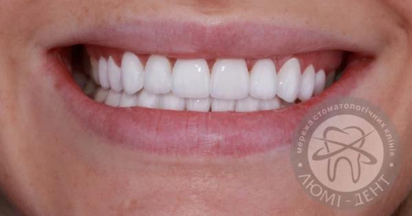 Виниры на зубах фото Люми-Дент