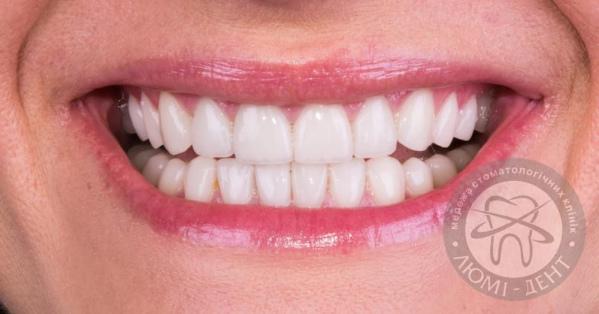 виниры на зубах фото киев Люми-Дент