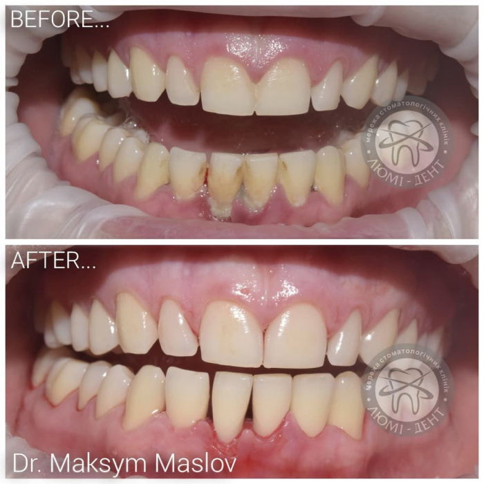 Чистка зубов airflow фото Люми Дент