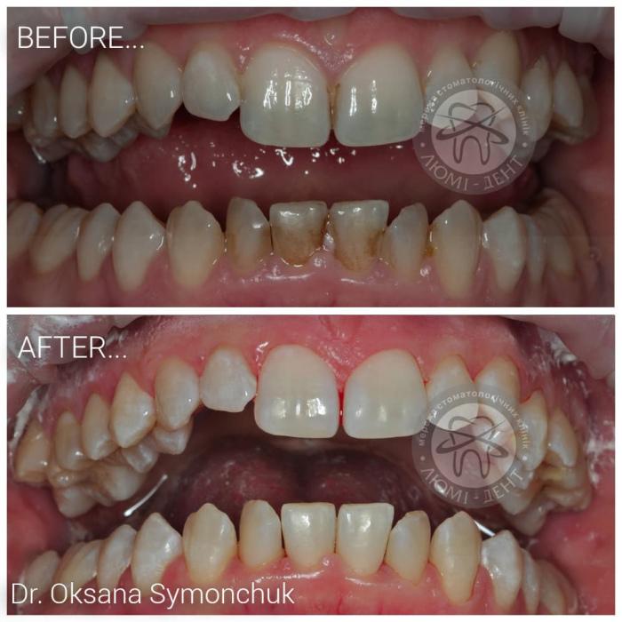 Чистка зубов Аир флоу фото Люми-Дент