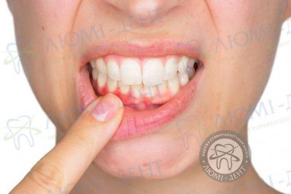 Зуб хитається і болить фото лікування Люмі-Дент