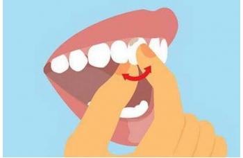 Хитається зуб що робити як зміцнити зубну рухливість Люмі-Дент