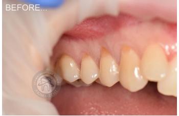 Лікування чутливості зубів фото Люмі-Дент