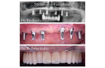 Виды зубных протезов фото ЛюмиДент