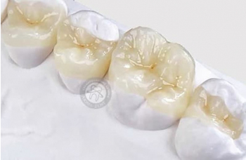 Відновлення зруйнованих зламаних зубів Київ фото Люмі-Дент