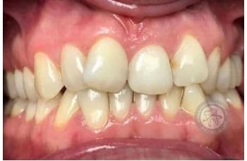 Правильный Неправильный прикус зубов фото Киев ЛюмиДент