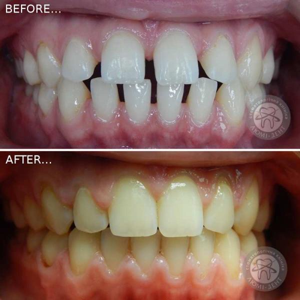 Клиника ортодонтии ортодонт Киев Люмидент