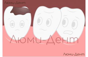 Кариес зубов лечение Киев фото Люми-Дент