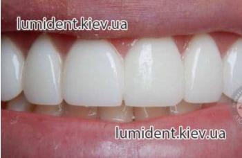 Коронка на зубы виды зубные мосты фото Киев ЛюмиДент