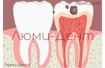 Пульпіт зубів лікування симптоми причини - Люмі Дент