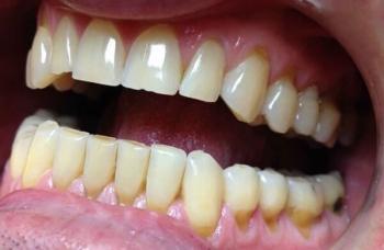Клиновидний дефект зубів лікування Київ фото Люмі-Дент