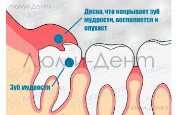 Зубы мудрости - лечить или удалить?