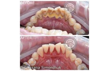Чистка зубного камня фото ЛюмиДент