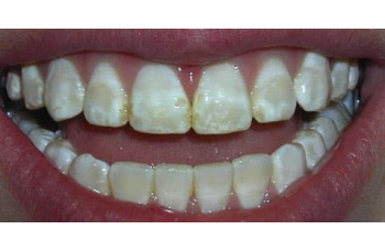 Гіперплазія емалі зубів фото ЛюміДент