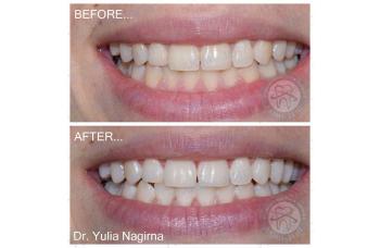 Средство для отбеливания зубов фото ЛюмиДент