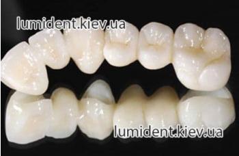 Что такое Протезирование зубов?