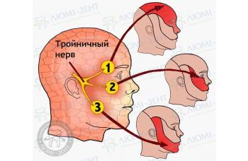 Трійчастий нерв фото ЛюміДент